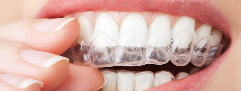 Ortodonzia e ortodonzia invisibile